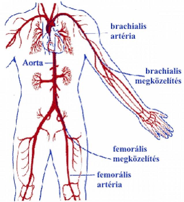 első lépések a magas vérnyomásért vese vaszkuláris hipertónia