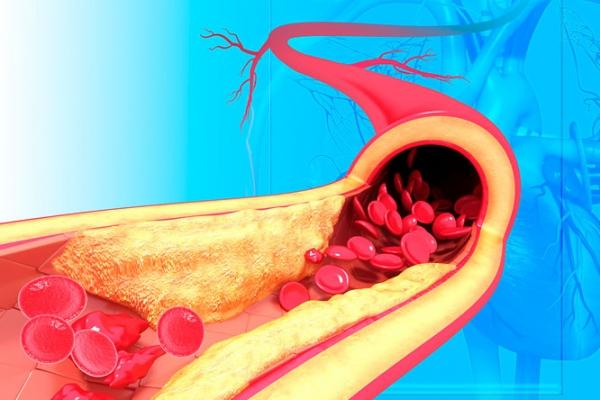 mi okozza a szív hipertóniáját magne b6 magas vérnyomás esetén